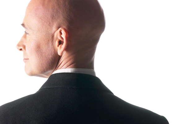 Ispadanje kose kod muškaraca